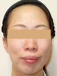 リファーム 症例写真2 After