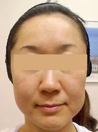 リファーム 症例写真3 Before