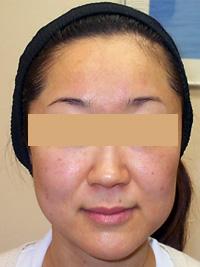 リファーム 症例写真3 After