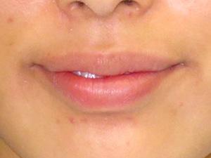 ぷっくりセクシーリップ(唇ヒアルロン酸注入) 症例写真1 Before