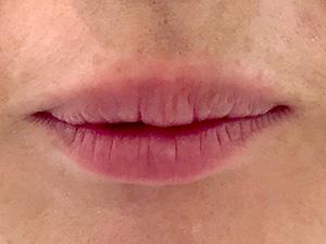 ぷっくりセクシーリップ(唇ヒアルロン酸注入) 症例写真2 Before