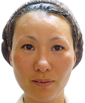 サーミスムース 症例写真2 Before