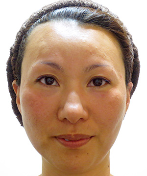 サーミスムース 症例写真2 After