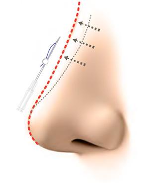 Y-ko(ワイコ)  鼻筋を通して隆鼻 変化