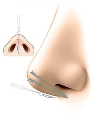Y-ko(ワイコ)  鼻中隔延長による隆鼻 挿入例