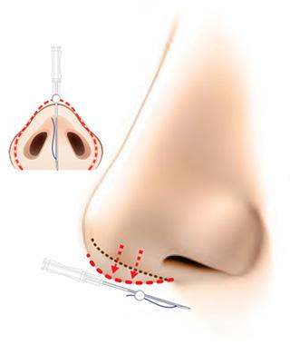 Y-ko(ワイコ)  鼻中隔延長による隆鼻 変化